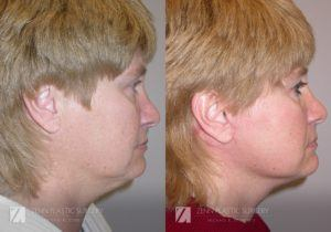 Raleigh Facelift Before and After Photos Patient 3.1