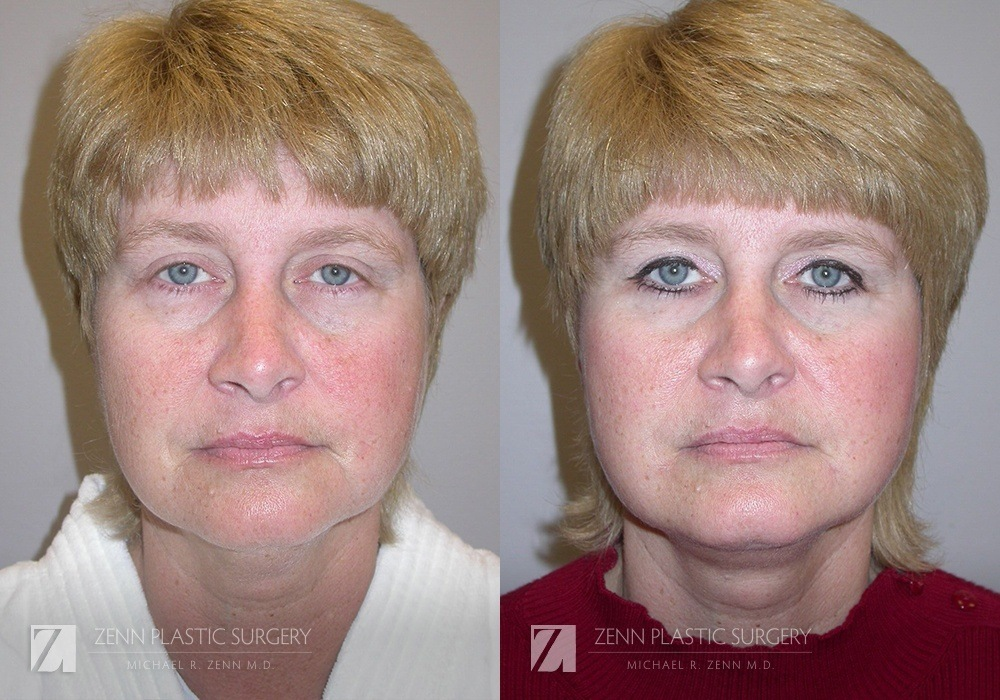 Facelift Before and After Photos Patient 6