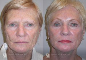 Facelift Before and After Photos Patient 7