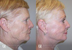 Raleigh Facelift Before and After Photos Patient 4.1