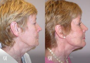 Raleigh Facelift Before and After Photos Patient 5.1