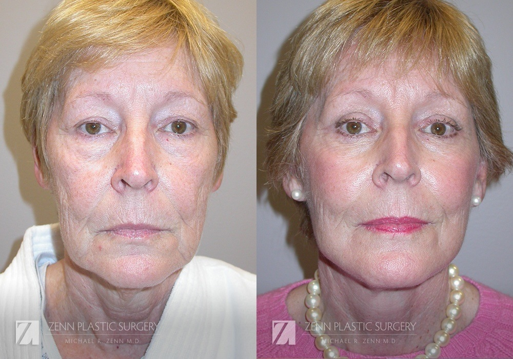 Facelift Before and After Photos Patient 8