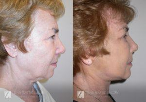 Facelift Before and After Photos Patient 9.1