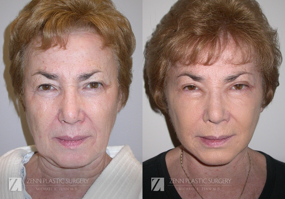 Facelift Before and After Photos Patient 9