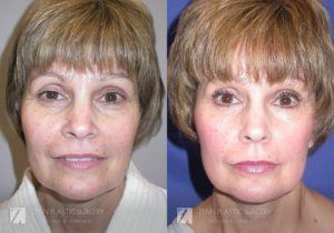 Raleigh Facelift Before and After Photos Patient 7