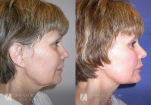 Raleigh Facelift Before and After Photos Patient 7.1