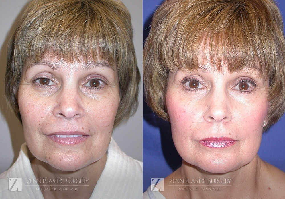 Facelift Before and After Photos Patient 10
