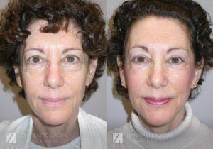 Raleigh Facelift Before and After Photos Patient 8