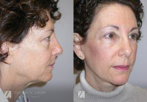 Facelift Before and After Photos Patient 11.1