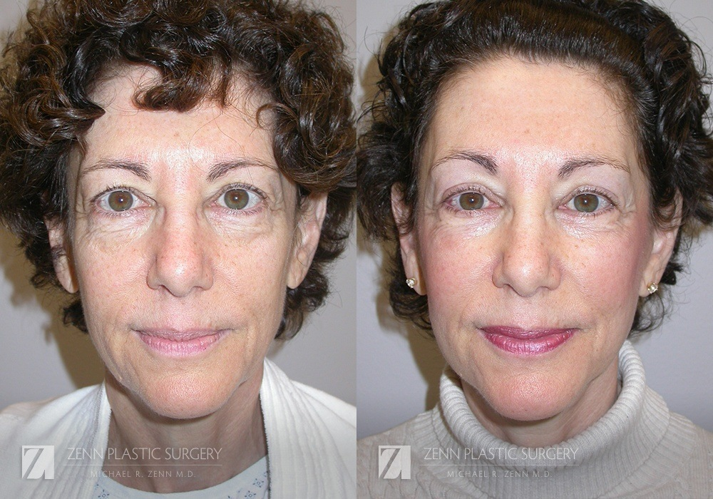 Facelift Before and After Photos Patient 11