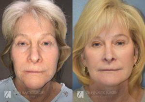 Facelift Before and After Photos Patient 1