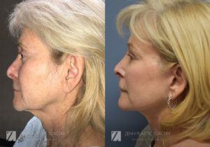 Facelift Before and After Photos Patient 1.1