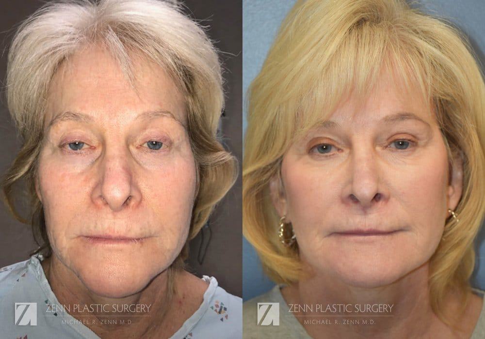 Raleigh Facelift Before and After Photos Patient 9