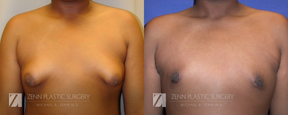 Gynecomastia Before and After Patient 2