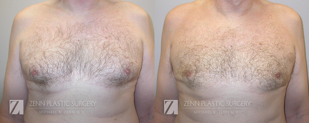 Gynecomastia Before and After Patient 3