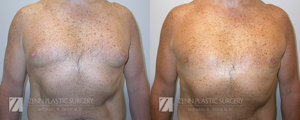 Gynecomastia Before and After Patient 5