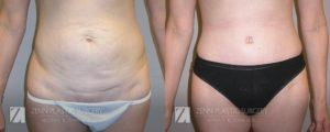 Tummy Tuck Before and After Patient 1