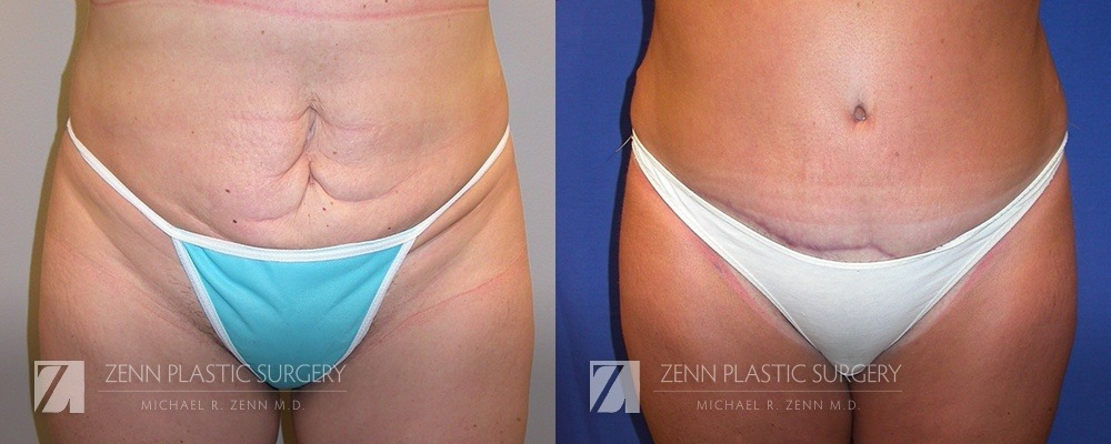 Tummy Tuck Before and After Patient 10