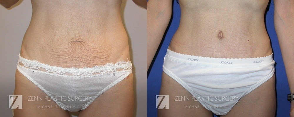 Tummy Tuck Before and After Patient 13