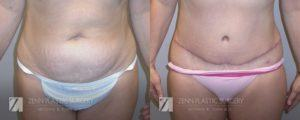 Tummy Tuck Before and After Patient 14