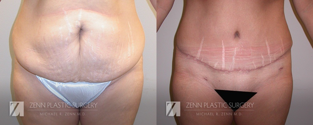 Tummy Tuck Before and After Patient 15