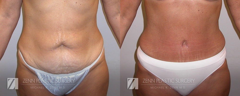 Tummy Tuck Before and After Patient 2