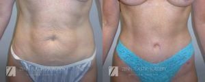 Tummy Tuck Before and After Patient 3