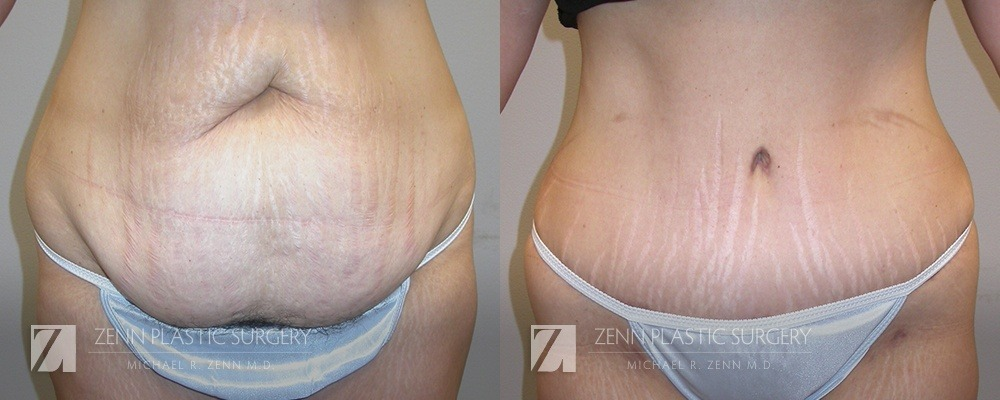 Tummy Tuck Before and After Patient 5