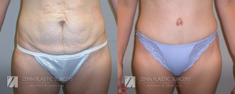 Tummy Tuck Before and After Patient 6