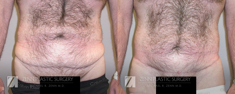 Tummy Tuck Before and After Patient 8