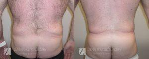 Tummy Tuck Before and After Patient 8.2