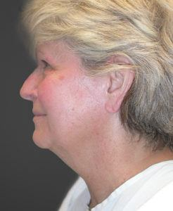 Patient 5 Before Facelift Left Side View
