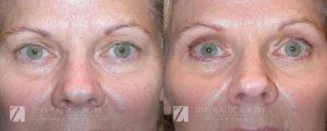 Brow Lift Before and After, Zenn Plastic Surgery, Raleigh, NC