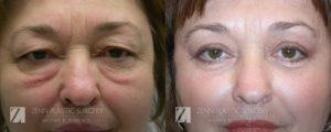 Blepharoplasty Eyelid Surgery and Brow Lift Before and After Photos Patient 1