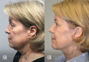 Patient 4 Facelift Before and After Left Side View