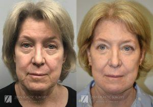 Patient 4 Facelift Before and After Front View