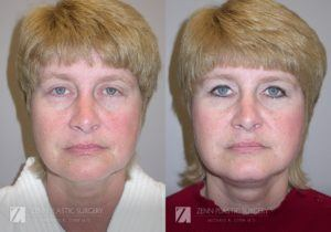 Facelift Before and After Photos Patient 6 Copy