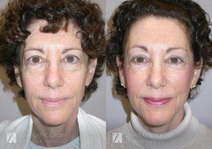 Facelift Before and After Photos Patient 11 Copy