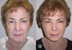 Facelift Before and After Photos Patient 9 Copy