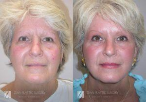 Facelift Before and After Photos Patient 5 Copy