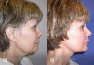 Facelift Before and After Photos Patient 10.1 Copy