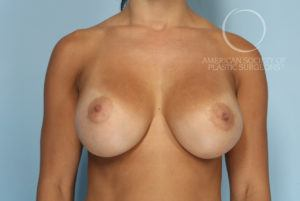 """Bottoming Out"" or Deformity of Breast Implants Before"
