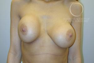 Capsular Contracture (Firm Scar, Distortion of Breast) Requires Breast Augmentation Revision Before