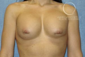 Revise a High Riding Breast Implant (Too High) Before