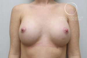 Lateral Breast Implant Displacement Before