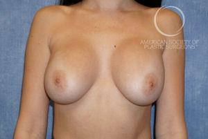 Augmentation Revision for Now Droopy Breasts (Breast Ptosis) Before