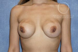 Rippling and Wrinkling of the Breast Requires Breast Implant Revision Surgery. Before