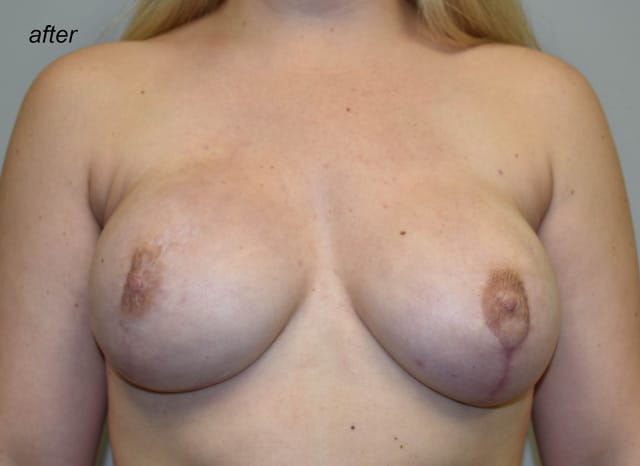 Breast Reconstruction Revision AFTER 2