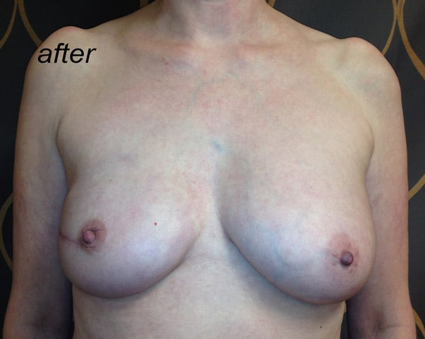 Breast Reconstruction Revision AFTER 1