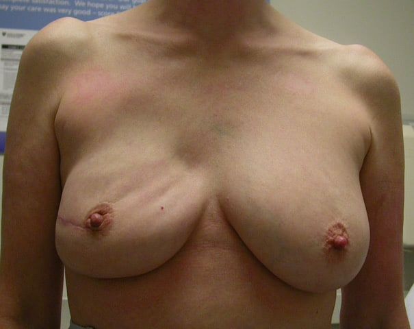 Breast Reconstruction Revision BEFORE 1